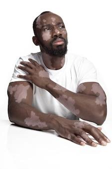 백반증 피부를 가진 아프리카계 미국인 남자의 초상화. 멜라닌 소실 때문에 색소침착이 있는 특수한 피부. 스킨케어 및 건강 관리, 포용 및 다양성, 패션 및 아름다움의 개념.