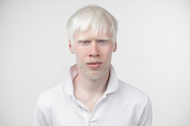 白い背景で隔離のスタジオ服を着たtシャツのアルビノの男の肖像画。異常な逸脱。珍しい外観。皮膚の異常