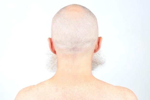 Портрет лысого мужчины с бородой сзади