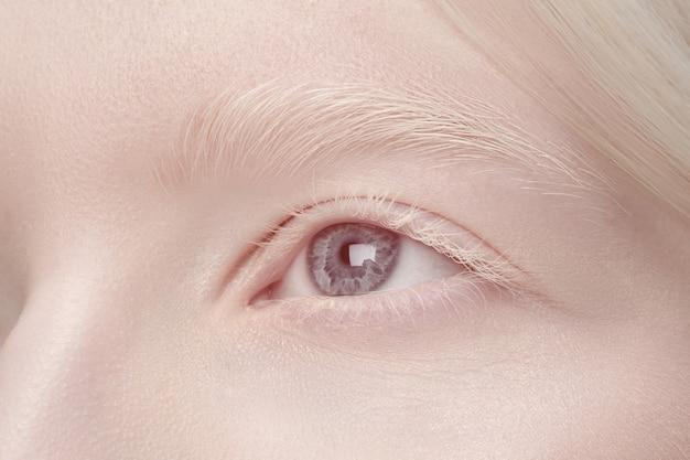 Портрет красивой женщины альбиноса изолированной на белой предпосылке студии.