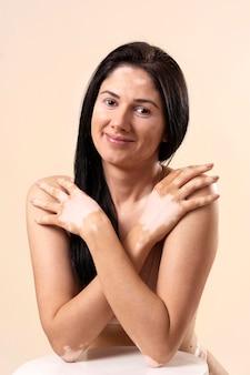 Vitiligo와 아름 다운 여자의 초상화