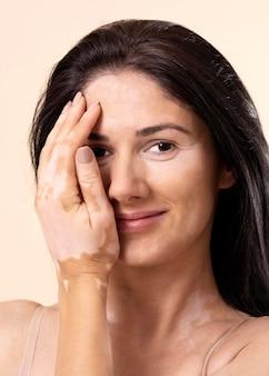 白斑を持つ自信のある女性のポートレート