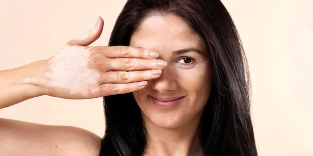 Vitiligo와 자신감 여자의 초상화