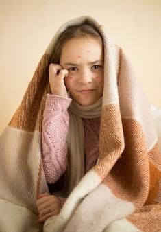 Портрет зудящей маленькой девочки с ветряной оспой
