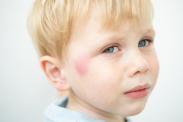 蚊に刺されて顔にアレルギー性の赤い斑点がある小さな男の子の肖像画。