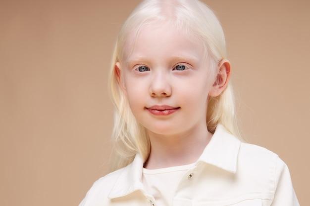 孤立した笑顔のアルビノの子供の女の子の肖像画
