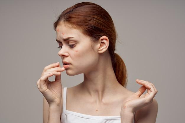 肌に問題のある女性の肖像画