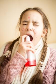 Портрет молодой девушки с гриппом, использующей спрей для горла