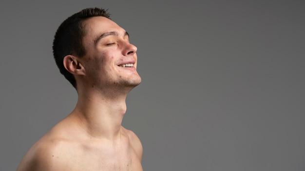 にきびとコピースペースを持つ若い男の肖像画