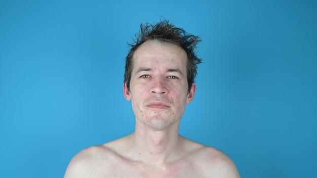 염증 된 얼굴을 가진 젊은 남자의 초상화입니다. 남성 스킨 케어 개념.