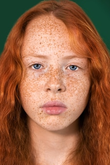 Portrait of a red-haired girl with lots of freckles on the skin and blue eyes on green