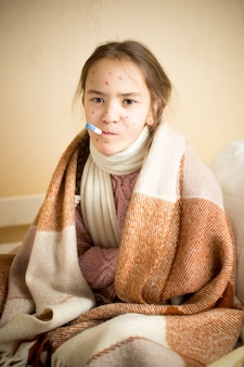 Portrait of sick girl with chickenpox measuring temperature with mouth thermometer