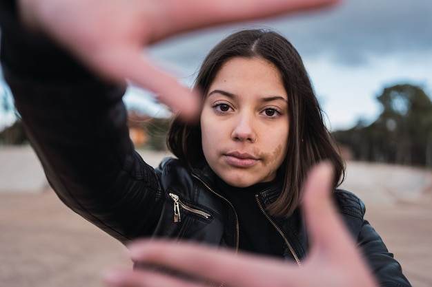 Portrait of teenage girl with a birthmark on her face with hands in front of her face.