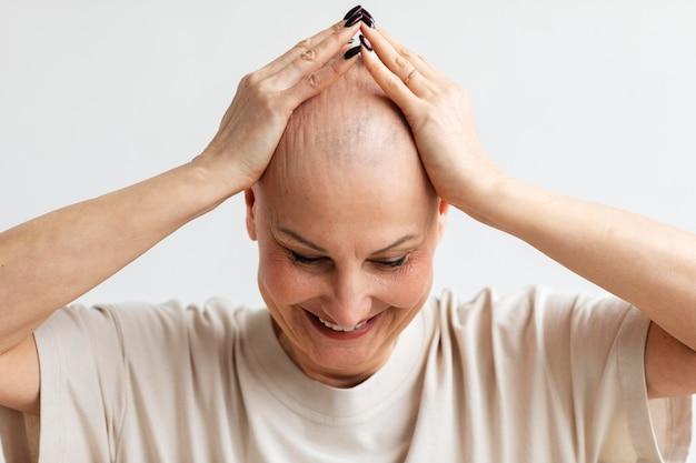 Ritratto di donna con cancro della pelle