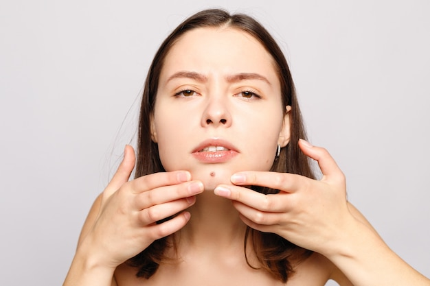 Portrait of young attractive woman touching her face and looking for acne.