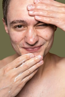 Portrait of young man being confident with acne