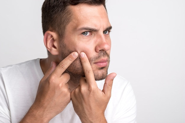 Portrait of young man squeezing pimples on his cheek