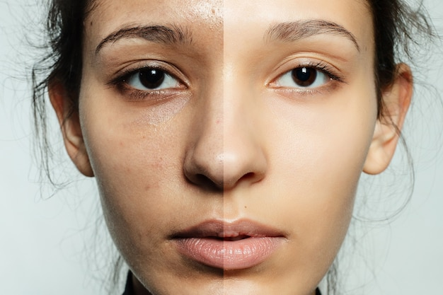 Portrait of young woman before and after cosmetic operation