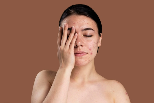 Portrait of young woman being confident with her acne