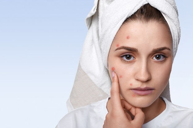 Portrait of young woman having problem skin and pimple on her cheek, wearing towel on her head having sad expression pointing