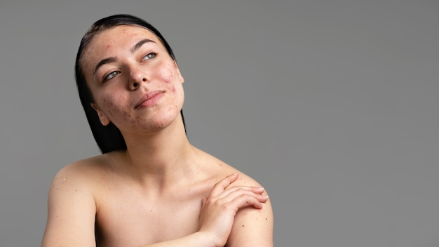 Portrait of young woman with acne