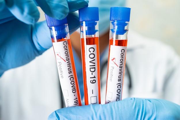 実験室でのcovid-19コロナウイルスの試験管内の陽性血液感染サンプル。入院中の患者をチェックして分析するために保持している科学者。