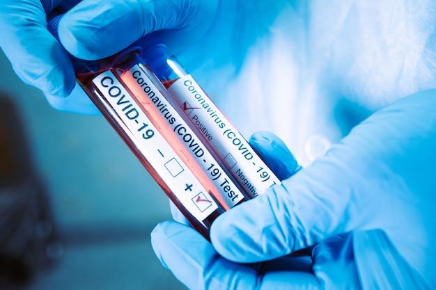 Положительный образец инфекции крови в пробирке на коронавирус covid-19 в лаборатории. ученый держит для проверки и анализа пациента в больнице.