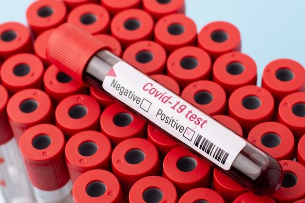 Положительная пробирка на коронавирусе на верхней части многих пробирок. вспышка коронавируса