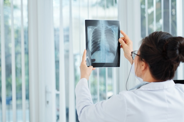 Possibility of lung inflammation