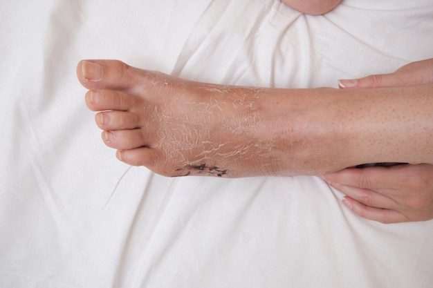 Postoperative suture on the foot, leg after fracture and after removal of plaster bandage