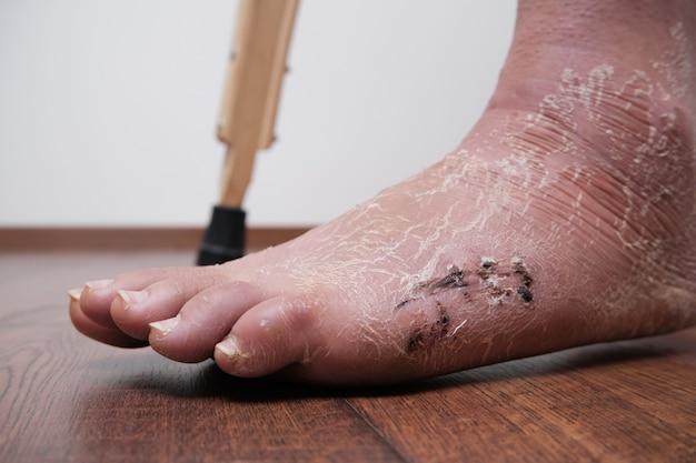 골절 후 및 석고 붕대 제거 후 발 다리의 수술 후 봉합