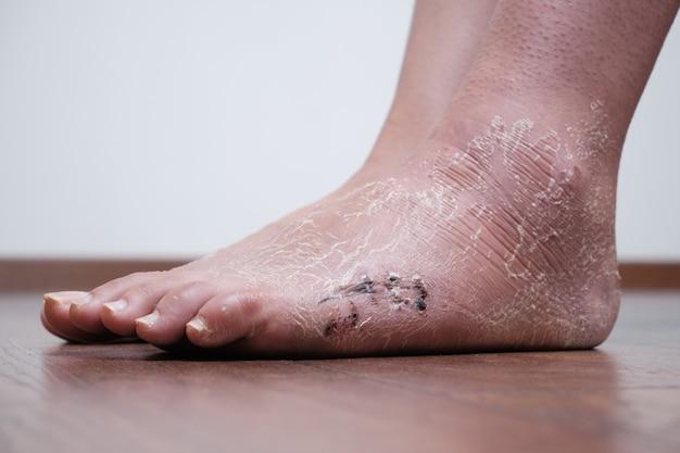 Послеоперационный шов на стопе, голени после перелома и после снятия гипсовой повязки