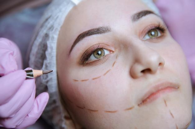 성형 수술을 위한 준비. 그녀의 얼굴에 천공 라인이 있는 클리닉의 젊은 모델.