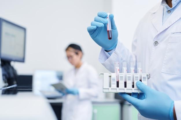 Подготовка медицинского образца для исследования вируса