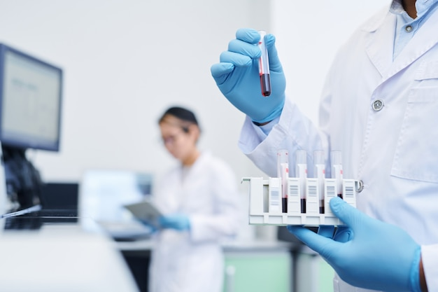 Preparing medical sample for virus research