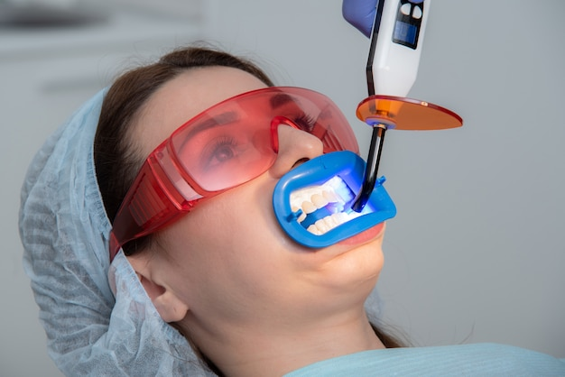 Preparing the oral cavity for whitening with an ultraviolet lamp. close-up