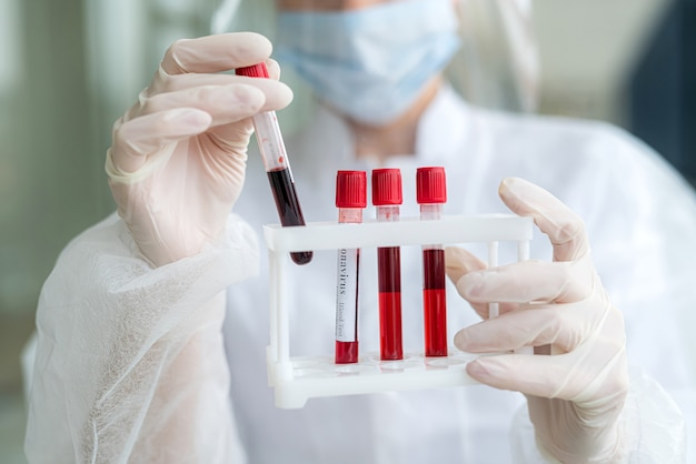 혈액 테스트 튜브를 들고 흰색 의료 제복을 입은 예쁜 간호사