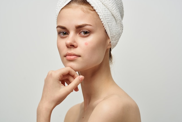 Pretty woman with a pimple on the face dermatology isolated background