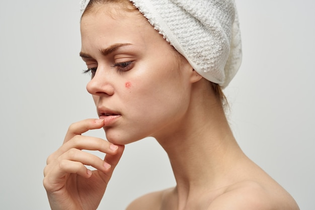 Pretty woman with a pimple on the face skin problems close-up. high quality photo