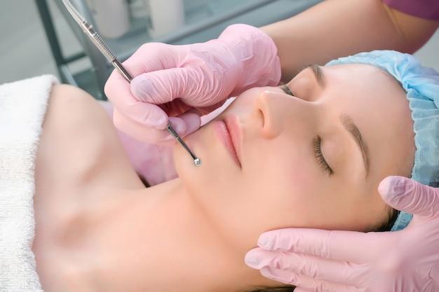 블랙 헤드와 여드름에서 숟가락 uno가있는 강철 제품으로 얼굴 피부를 청소하는 절차.