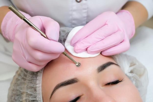 Процедура очистки кожи лица стальным прибором с ложкой uno от черных точек и прыщей.