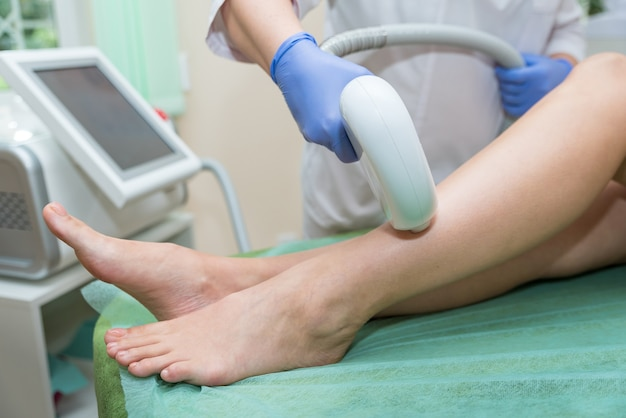 Procedure for laser hair removal from legs