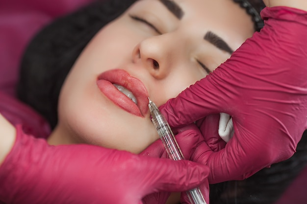 Procedure of lip augmentation in the beauty salon