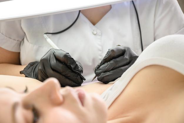 Процедура удаления волос навсегда в подмышках женщины с помощью метода электроэпиляции крупным планом