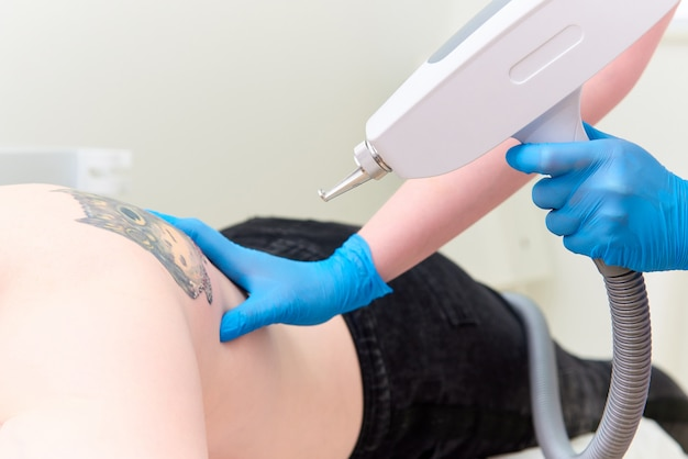 Procedure removal tattoo in laser cosmetology clinic.