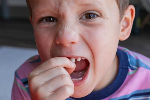 아기 치아를 제거하는 과정 용감한 강한 소년이 자신의 치아를 뽑습니다 건강한 아기 치아 손실
