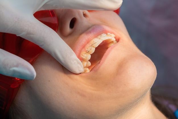 여성 치과의사와 함께 치과에서 백인 소녀의 치아 교정기를 제거하는 과정