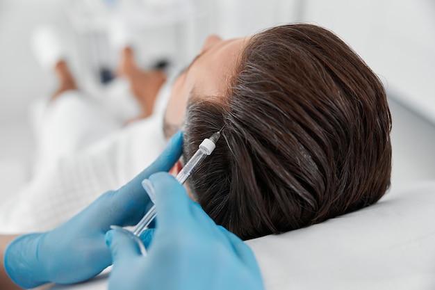 Профессиональный косметолог вводит витамин в кожу головы пациента во время процедуры мезотерапии.