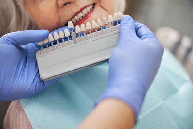 Professional dentist matching patient teeth color with palette while woman sitting on the dentist chair