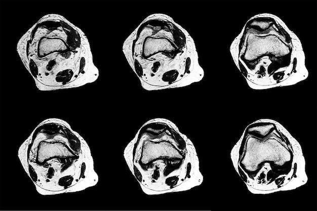 Мрт и кт рентгеновские снимки профессионального врача